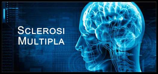 Risultati immagini per sclerosi multipla manifestazioni
