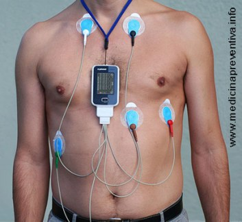 monitor-holter