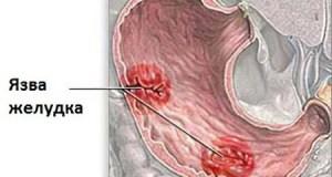 Как лечить язву желудка? Основные средства и рекомендации