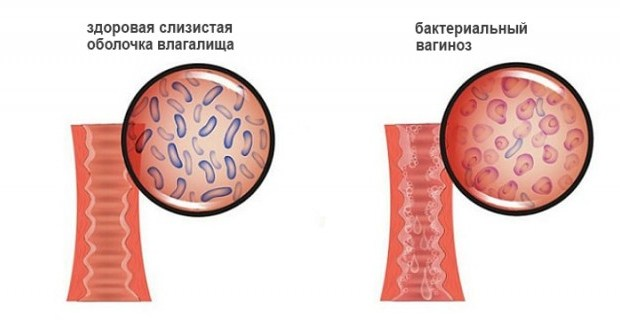 Бактериальный вагиноз: причины, симптомы и лечение