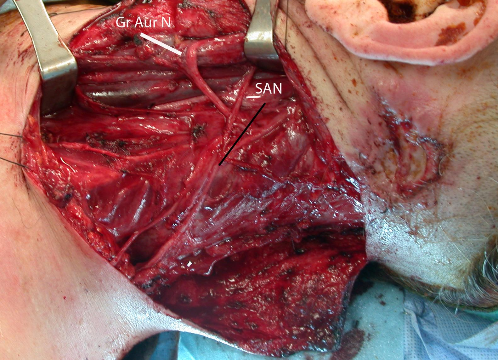Case Example Posterolateral Neck Dissection