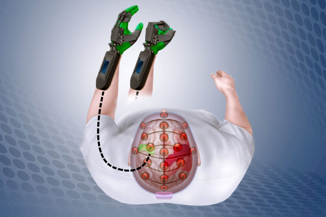 The Ipsihand detects electrical signals in the uninjured part of the brain (green), and opens and closes a plastic brace fitted onto the paralyzed hand (green). By doing so, it helps train the uninjured brain areas to take over functions previously performed by injured areas (red).