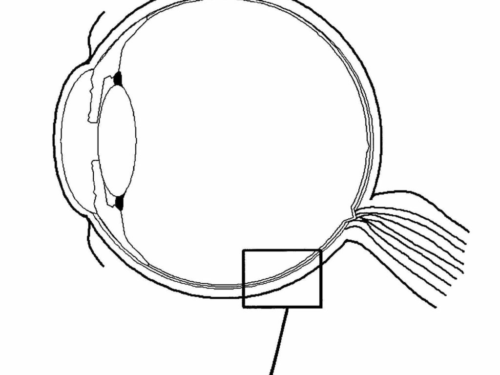 Without Label More Eye Diagrams The National Institute Nei