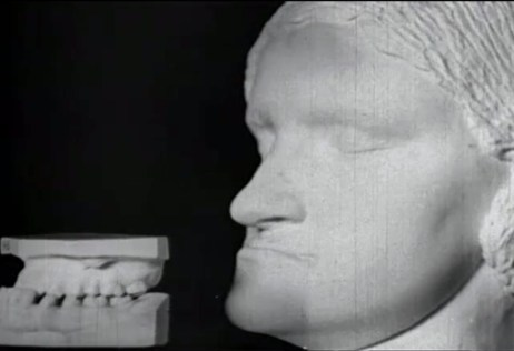 A plaster cast of a woman's head, along with a plaster cast of her teeth, illustrating the under-bite.