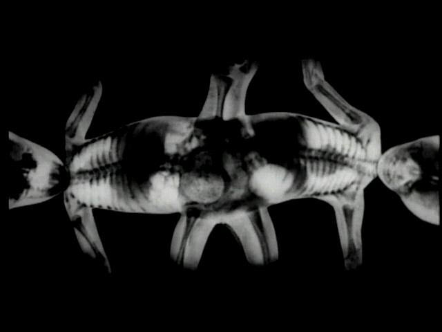 Research on Conjoined Twins