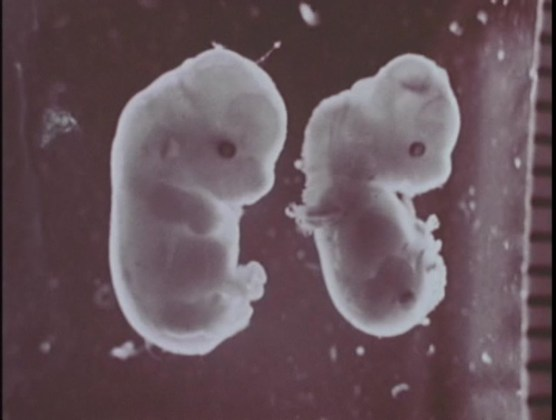 Two animal embryos, one healthy and one with visible deformities.