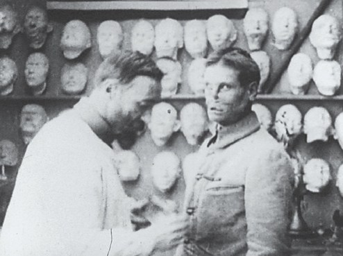 A man with a facial injury looks at the camera as a man works on his prosthetic.
