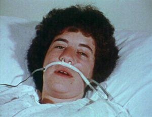 A young man in a hospital bed with breathin tubes.