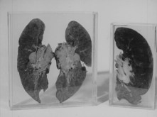 fossilized lungs in a clear box
