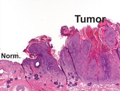 Invasive growth - a characteristic of a tumour