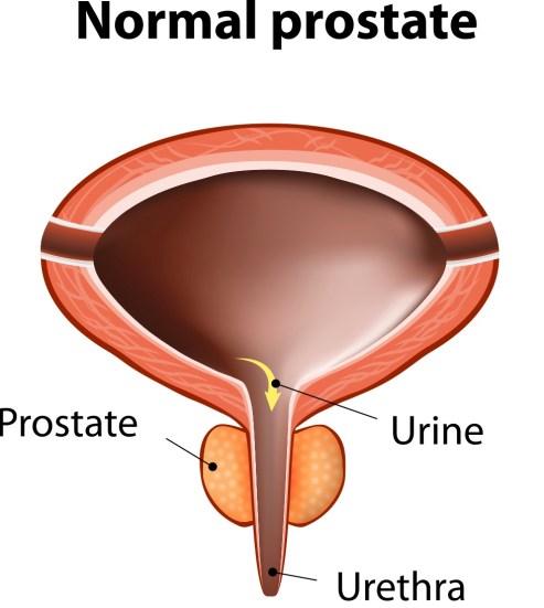 Benign Prostatic Hyperplasia_244134751 copy 2