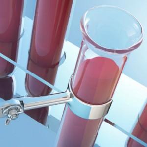 Клинический анализ натощак или нет. Забор крови из вены или из пальца. Процедура проведения исследования крови