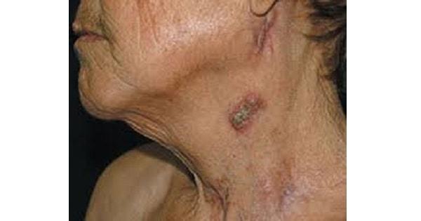 Tuberculosis Of Skin