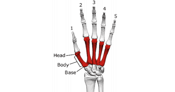 Bones Of Hand- Metacarpal