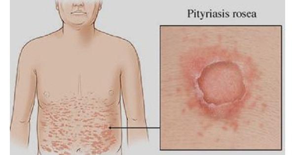 Pityriasis Rosea Www Medicoapps Org