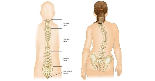 Scoliosis Archives - www medicoapps org