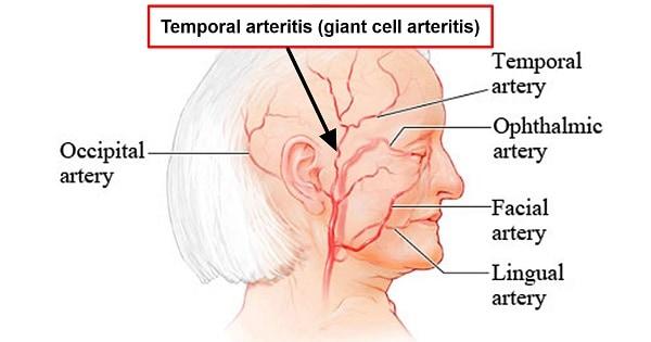 Temporal Arteritis Archives Medicoapps
