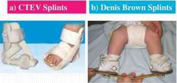 Congenital Clubfoot Archives - www.medicoapps.org