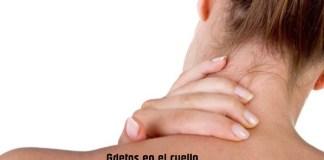 Grietas en el cuello: causas, efectos secundarios, riesgos y tratamiento