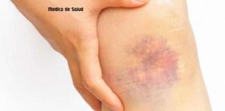 ¿Qué causa los moretones al azar en las piernas?
