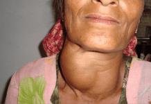 Hipertiroidismo: Causas, Síntomas, Diagnostico y Tratamiento.