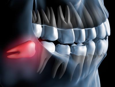 El miedo retrasa y complica la cirugía de extracción de las muelas del juicio