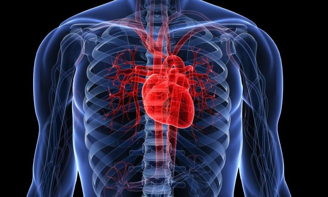 Enfermedad del corazón grande: cardiomiopatía dilatada