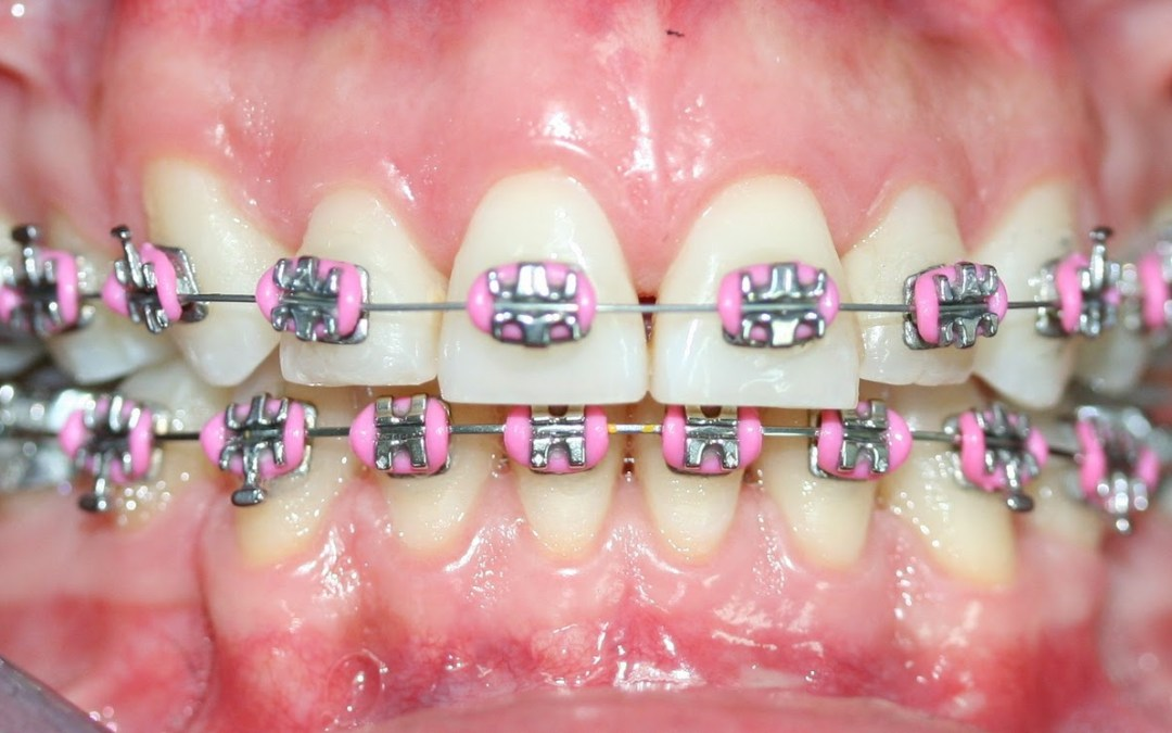 Tipos de tratamientos ortodonticos