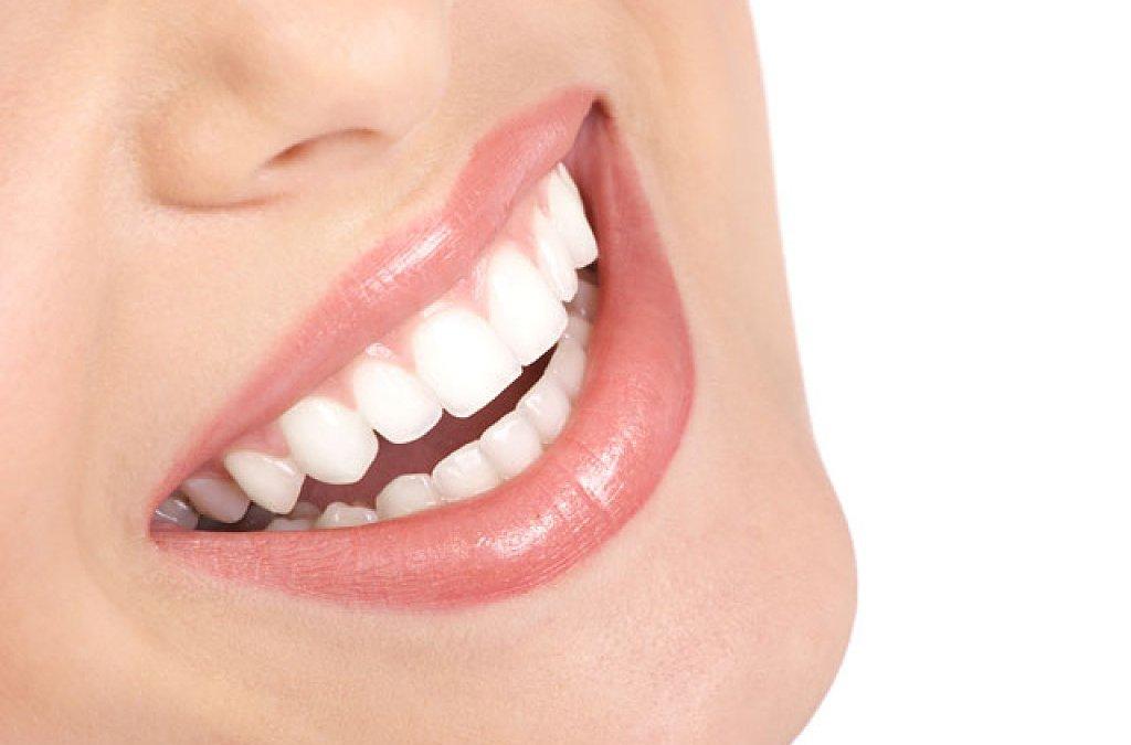 Una dentadura perfecta y espectacular. Todas las estrellas americanas las llevan. Y sus dientes parecen reales.