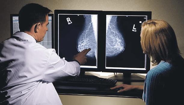 ¿Qué diferencia hay entre ultrasonido mamario y mastografía?