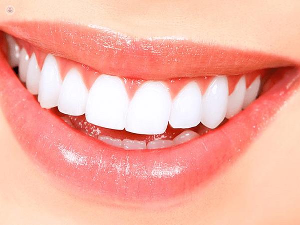 Blanqueamiento dental: tratamiento recomendable y seguro