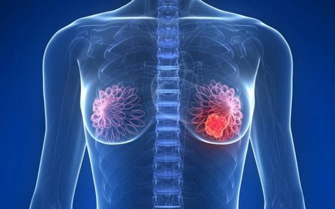 Mamogramas (mamografías)