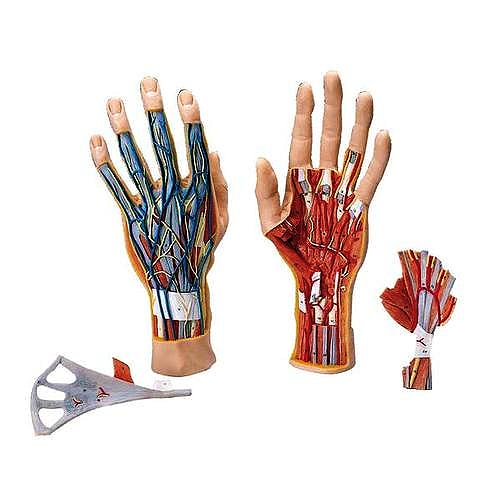 Las lesiones que puede tener la mano: