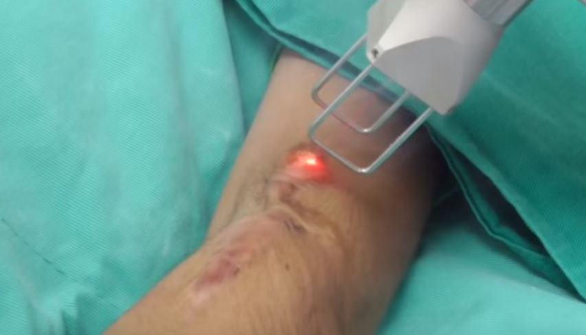 Cirugía con láser: