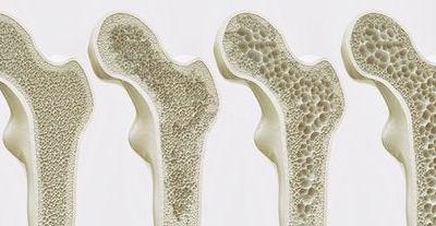 Osteoporosis: