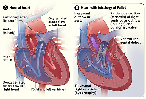 Cross-Section of a Normal Heart and a Heart with Tetralogy of Fallot.