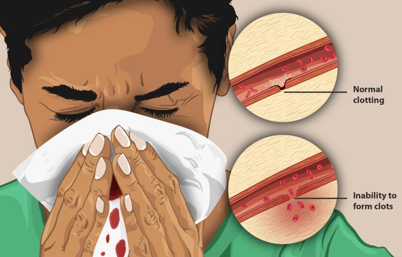 What is hemophilia