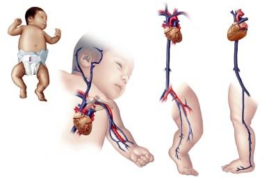 Medical Illustration Portfolio - Laura Maaske Medimagery