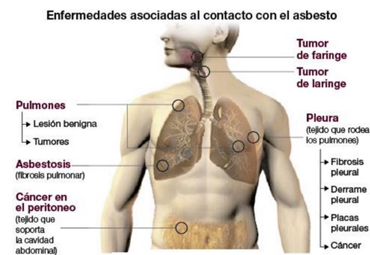 El problema invisible del amianto o asbesto