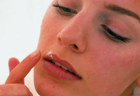 Как быстро избавиться от малярии на губе