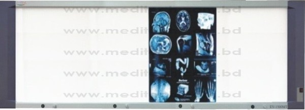 X-Ray Viewbox LED (EV-1500MT)