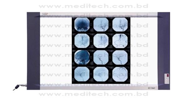 X-Ray Viewbox LED (EV-750MT)