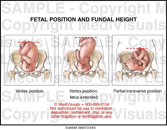 Twins Fetal Presentation