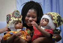 Photo of BOGU HVALA: U vatikanskoj dječjoj bolnici uspješno razdvojili sijamske blizanke!