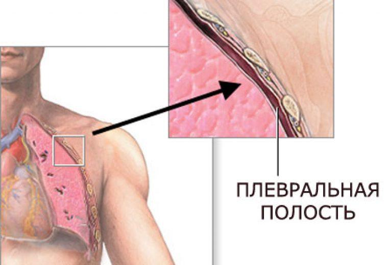 Пневмоторакс легких что это такое, виды и классификация