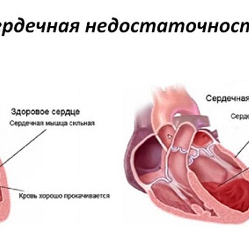 Застойная сердечная недостаточность