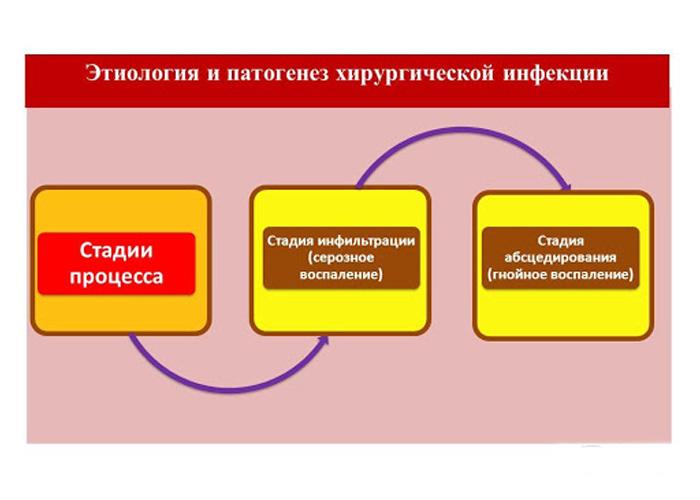 Курсовая работа - Стадии течения гнойно-воспалительного процесса. Принципы лечения и ухода за больным
