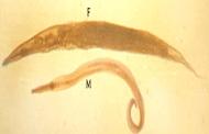 Oxyuris vermicularis (Cacing Kremi)