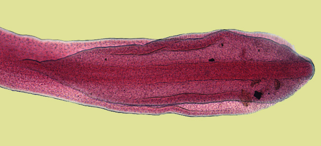 72+ Gambar Telur Cacing Hymenolepis Nana
