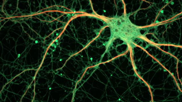 New finding shows microglia serve a previously unknown role in neuronal-healing